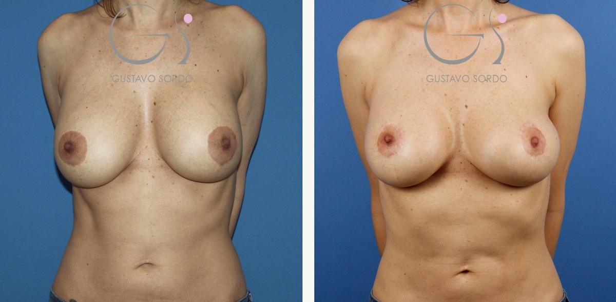 Liposucción y cambio de implantes por rotura