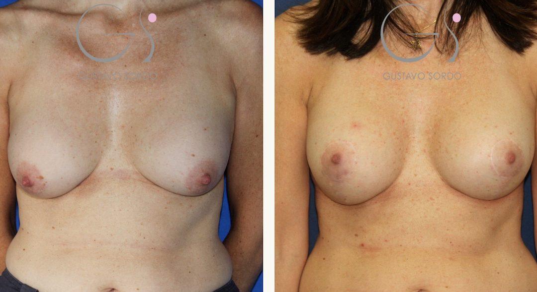 Cambio de implantes con mastopexia en T invertida