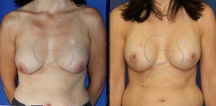 cambio de implantes por rotura con mastopexia en madrid