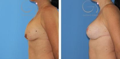 Segunda operación de pecho con mastopexia
