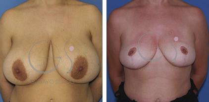 Gigantomastia resuelta con una reducción de mamas