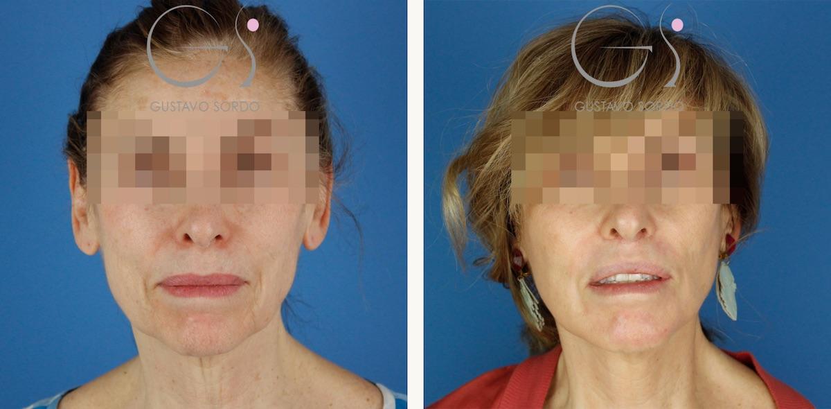 Lifting cervicofacial + labios + dermabrasión + lipofilling