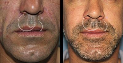 ¿Por qué ha aumentado el número de hombres que se someten a cirugía estética?