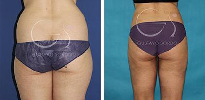 Liposucción en mujer de 38 años antes y después