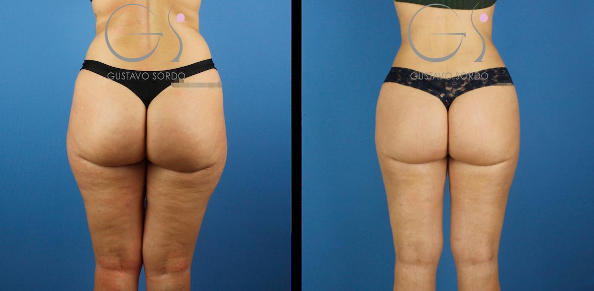 Liposucción tumescente en piernas y glúteos