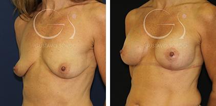 Antes y después de una mastopexia en mujer de 46 años