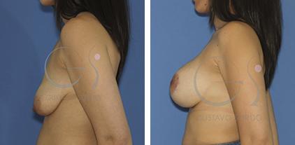 mastopexia con aumento resultado operacion
