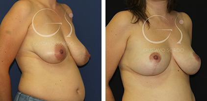 Mastopexia: Fotos del antes y después en mujer de 41 años