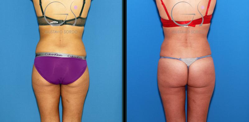Redefinición del contorno corporal con liposucción y lipofilling