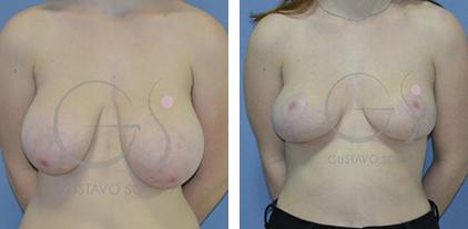 Tratamiento de la hipertrofia mamaria con asimetría