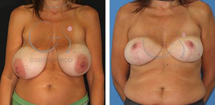 Reducción de pecho en una mujer con hipertrofia mamaria severa