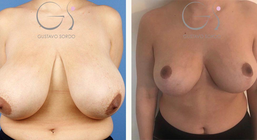 Reducción de pecho sin implantes en mujer de 37 años