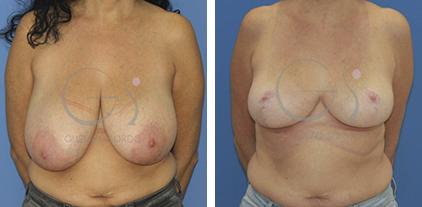 Reducción mamaria con patrón en T. Paciente con hipertrofia mamaria