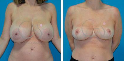 Reducción de pecho en mujer de 48 años con hipertrofia