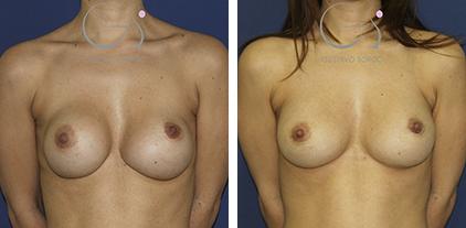 Segunda operación de pecho en mujer de 36 años