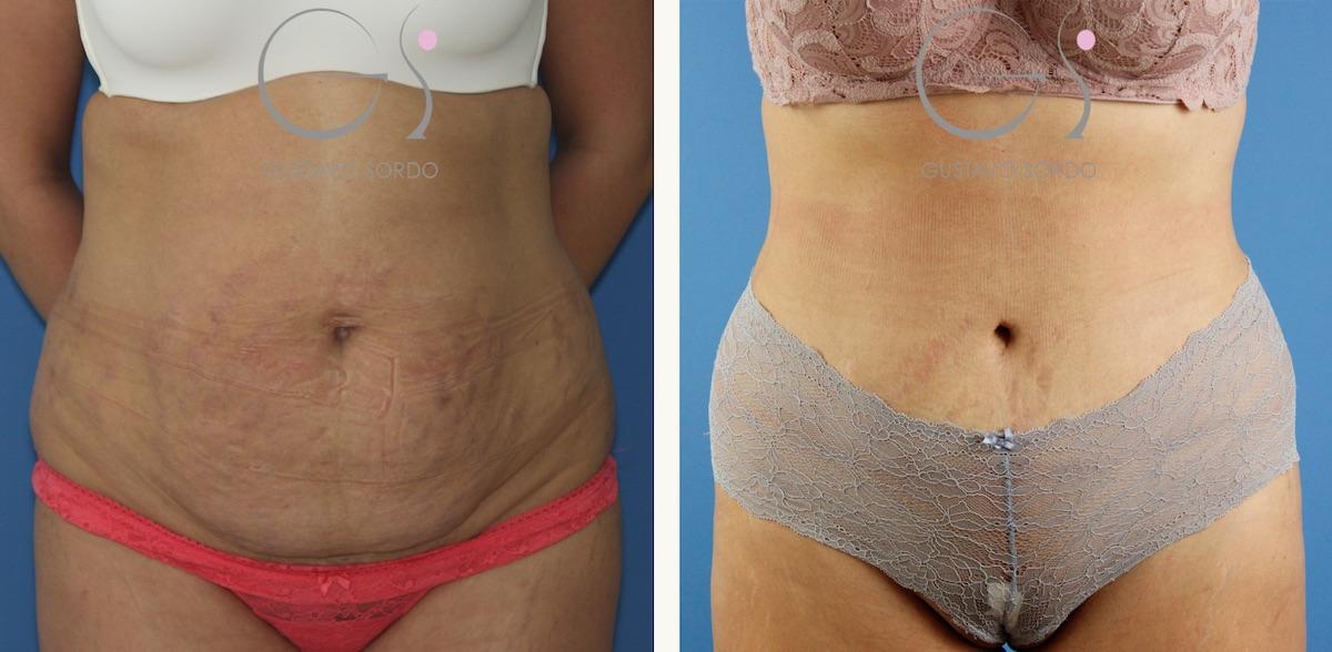 Abdominoplastia en mujer con estrías