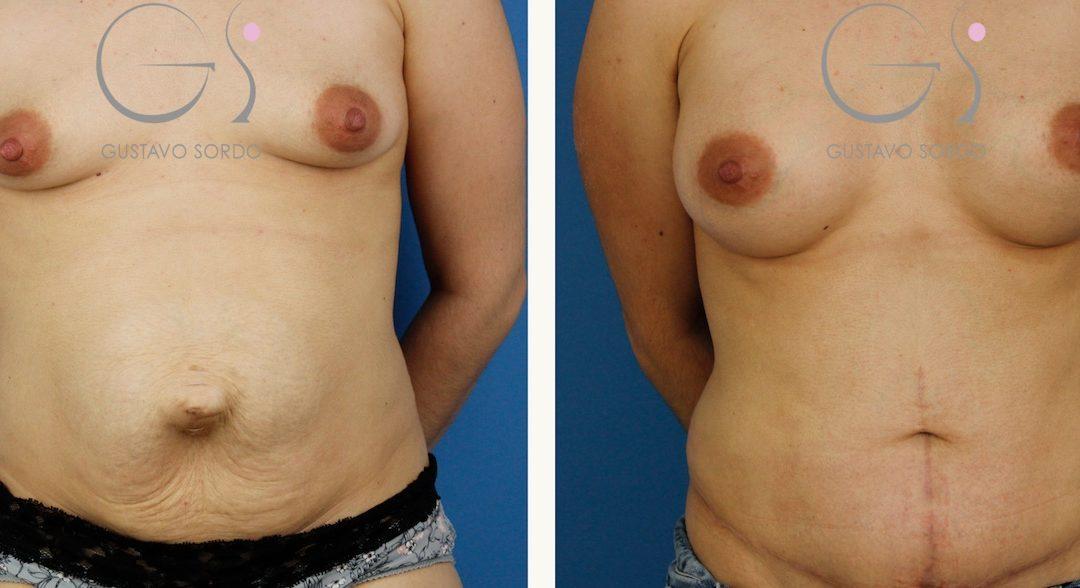 Abdominoplastia con reconstrucción de eventración abdominal