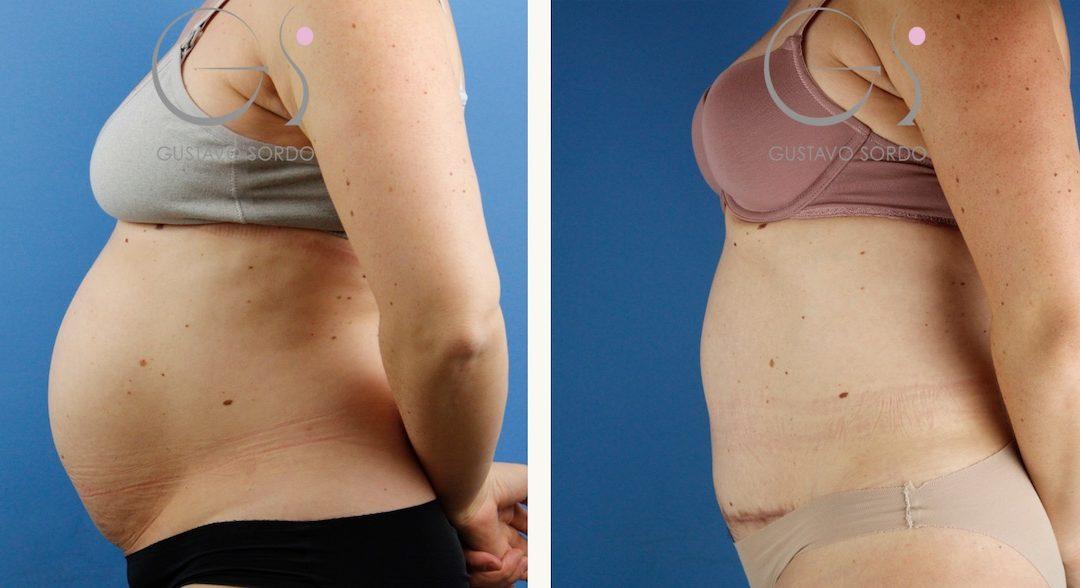Abdominoplastia con hernia central y diastasis abdominal