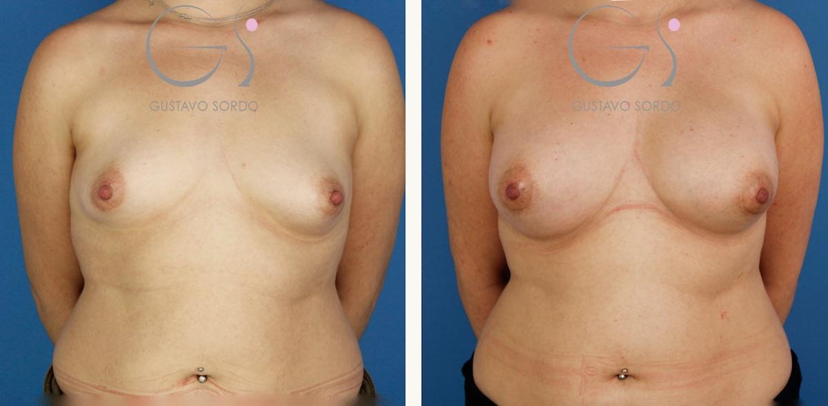 Mamas tuberosas: aumento de pecho con prótesis anatómicas de 375 cc.