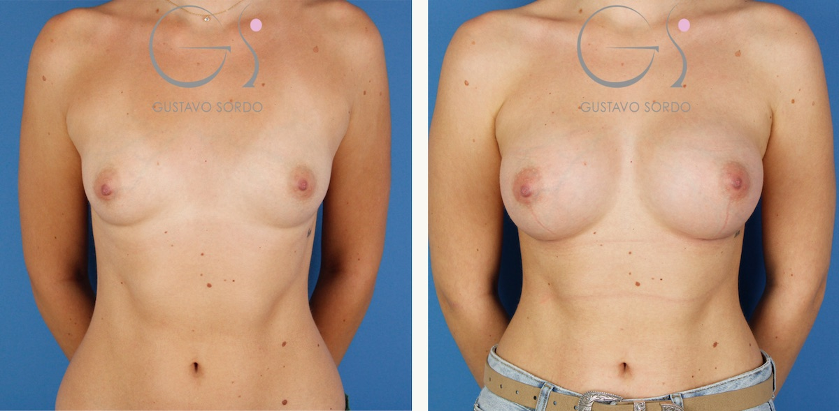 Aumento de pecho con prótesis anatómicas de 330 cc.