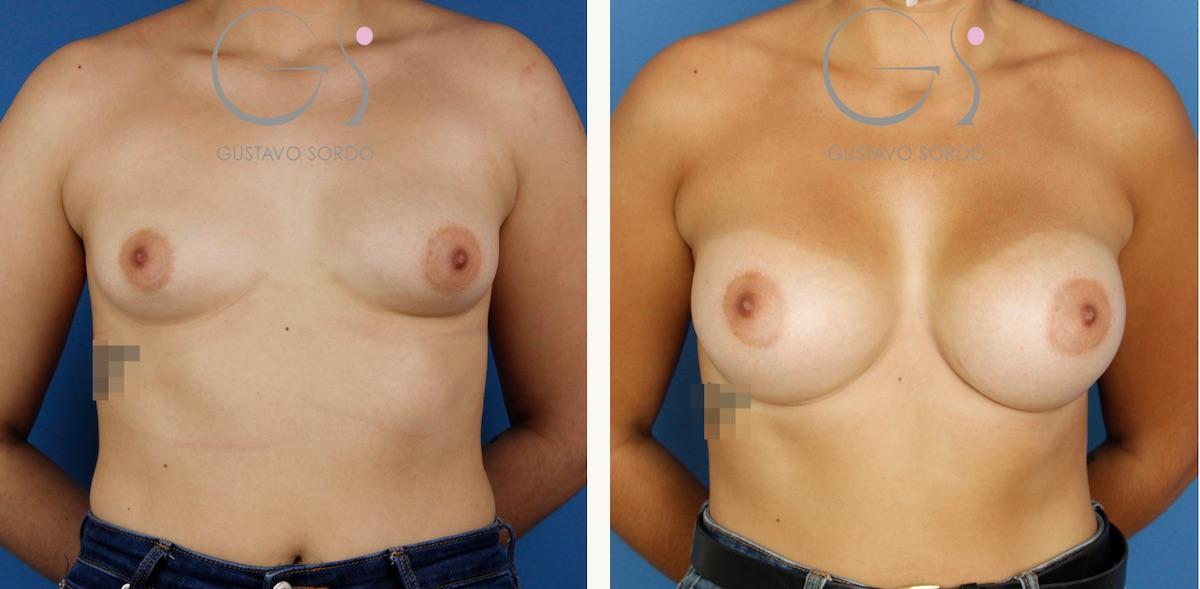 Aumento de pecho en mamas tuberosas