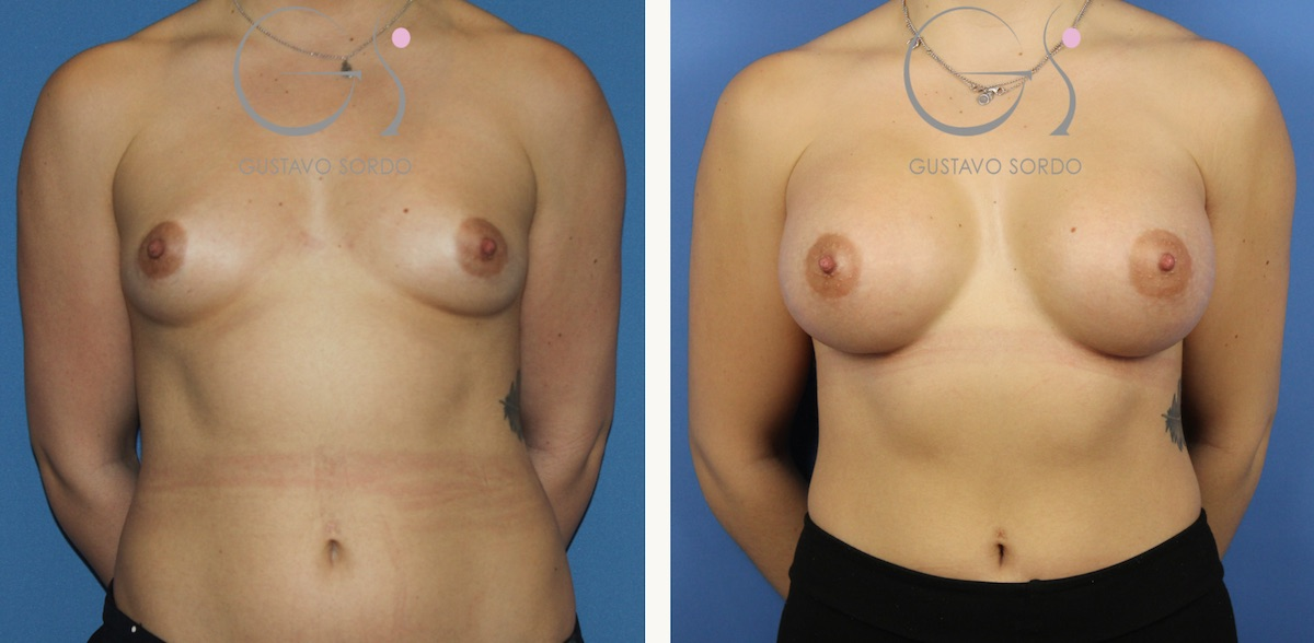 Mamoplastia de aumento con prótesis de 295 cc.