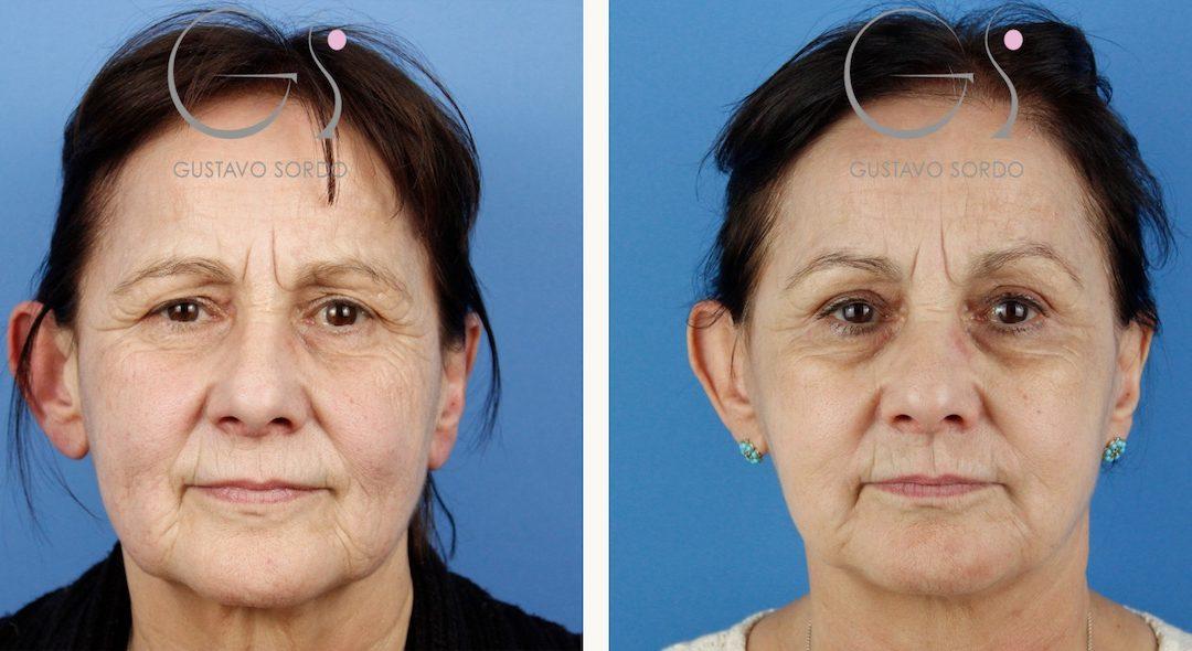 Rejuvenecimiento facial en una mujer de 65 años