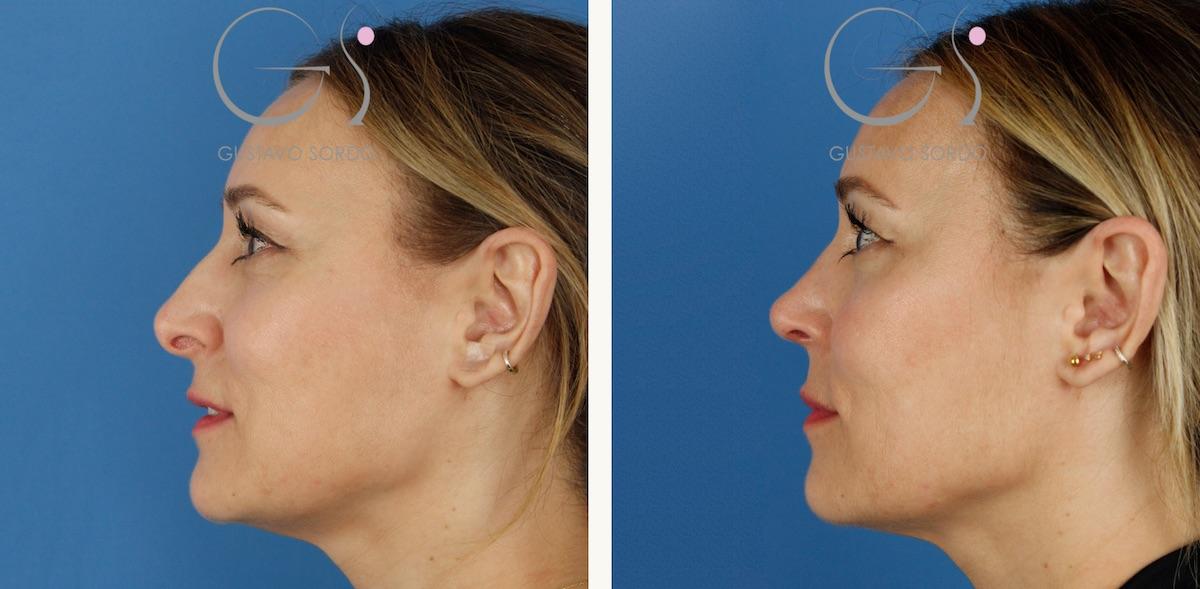 Rinoplastia ultrasónica: columela colgante y ala retraída