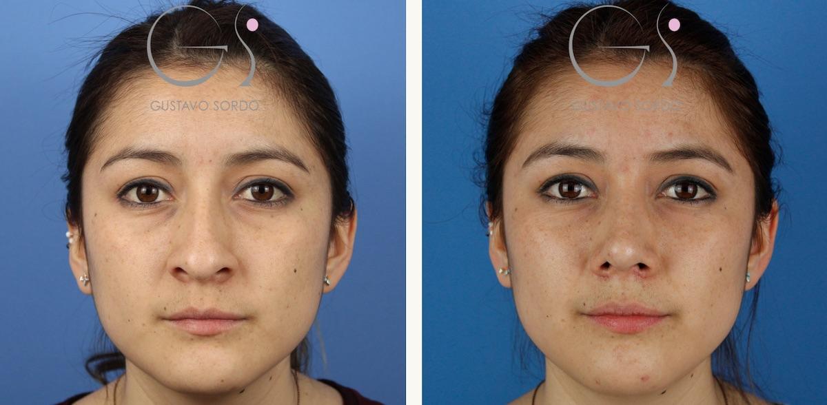 Rinoplastia ultrasónica en mujer de 26 años