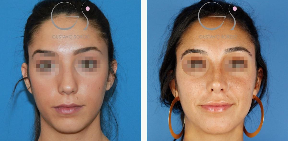Rinoplastia ultrasónica en mujer de 28 años