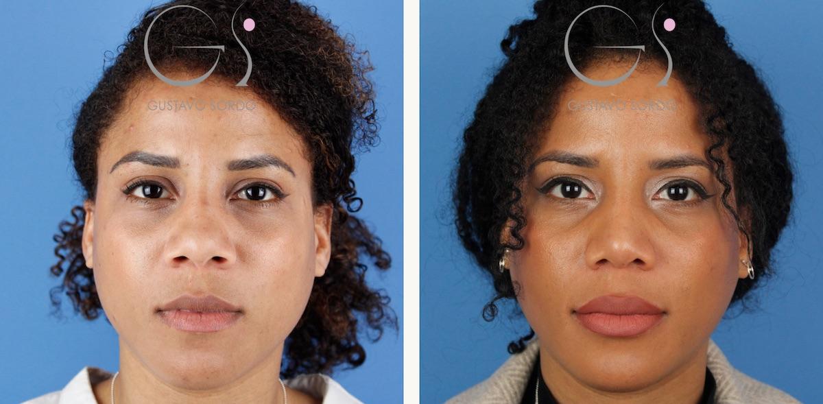 Rinoplastia ultrasónica en mujer de 31 años