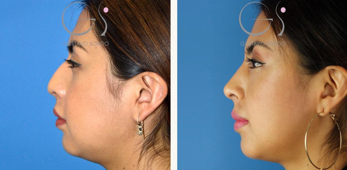 Rinoplastia ultrasónica sobre nariz aguileña