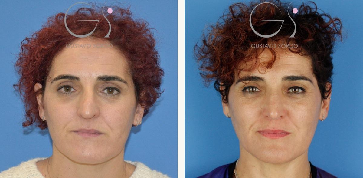 Rinoseptoplastia extracorpórea en mujer de 50 años