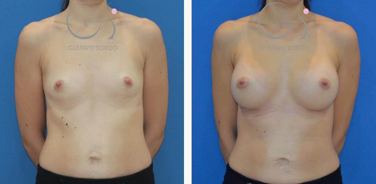 Aumento de pecho en mujer de 31 años con prótesis anatómicas de 375 cc.