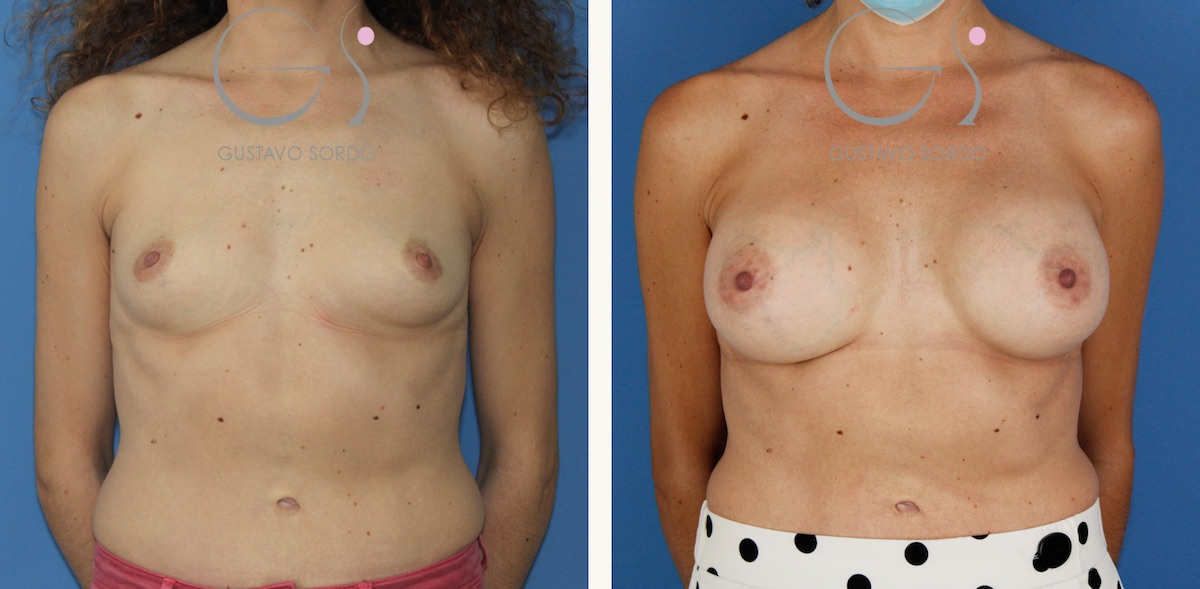 Aumento mamario con implantes de 375 cc. redondos