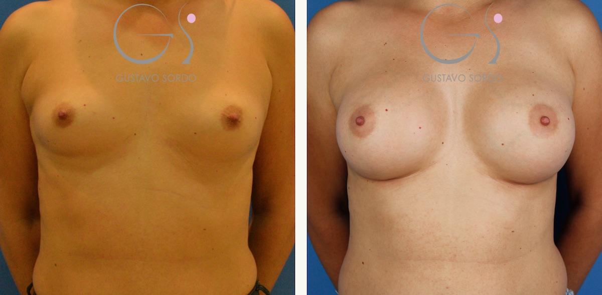 Aumento mamario con prótesis anatómicas de 295 cc.