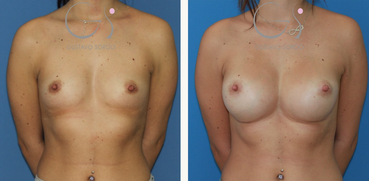 Aumento de mamas en paciente con esternón hundido