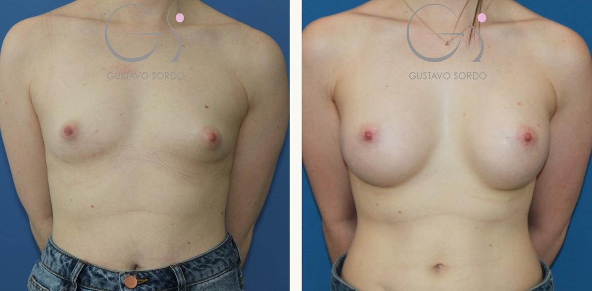 Aumento de mamas con prótesis de 295 cc. anatómicas
