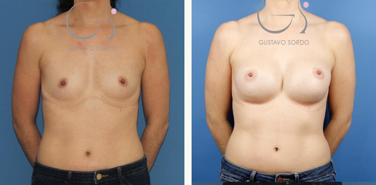 Aumento de pecho con implantes anatómicos de 330 cc.