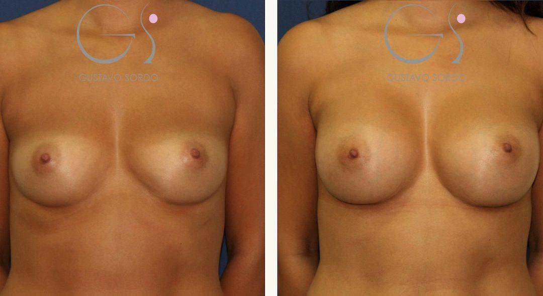 Aumento de pecho con implantes redondos