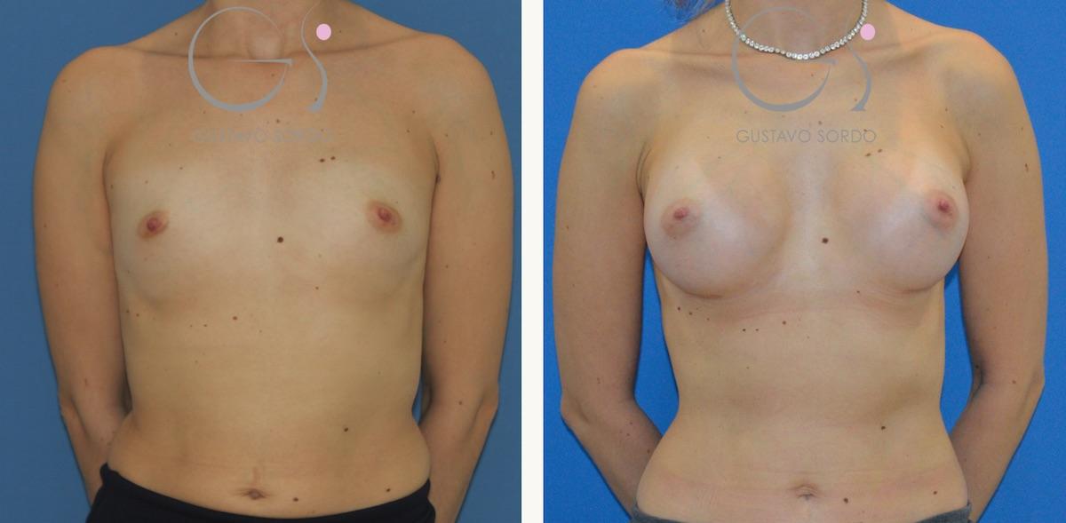 Aumento de pecho en mujer de 31 años. Prótesis de 245 cc. anatómicas