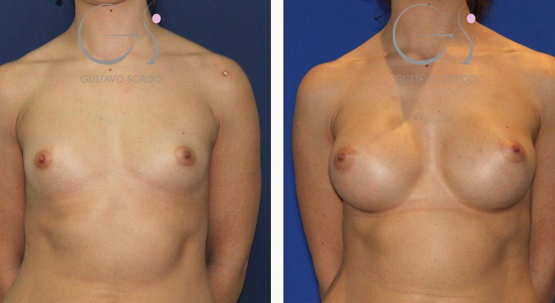 Aumento de pecho en mujer de 27 años con prótesis anatómicas