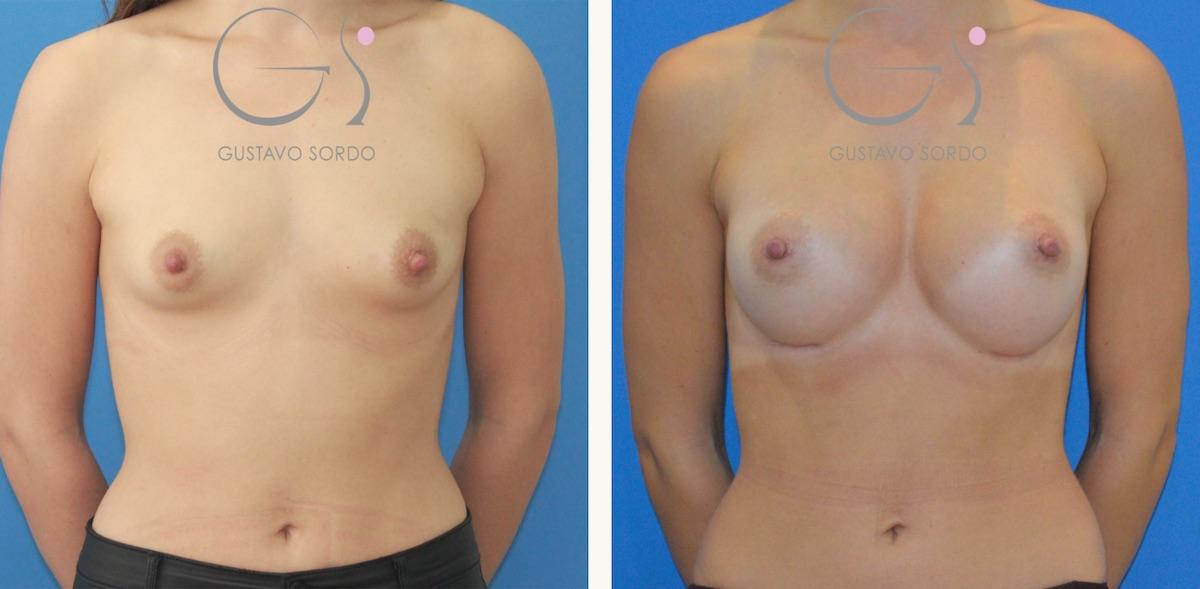 Aumento de mamas con prótesis de 330cc en mujer de 31 años