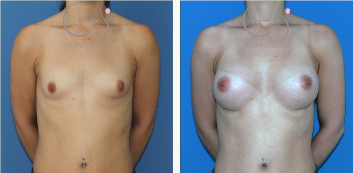 Aumento de pecho en una mujer con hipoplasia mamaria