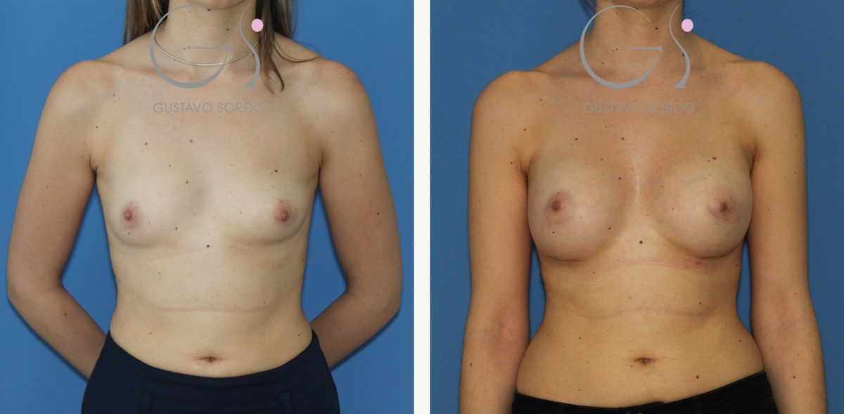 Aumento de mamas en paciente joven