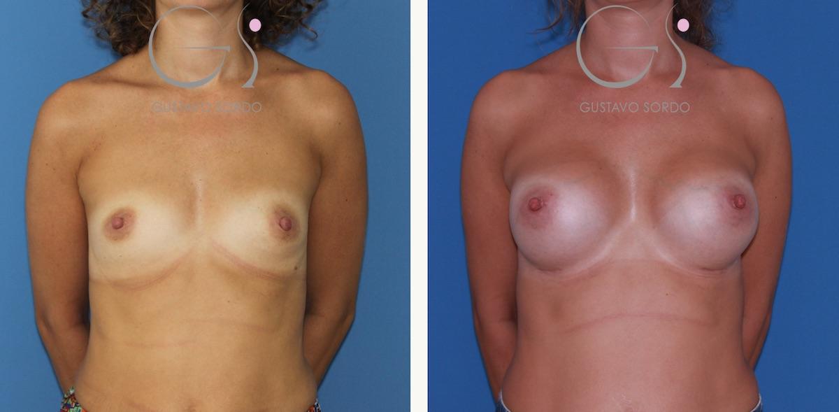 Resultado natural de un aumento de mamas con prótesis redondas