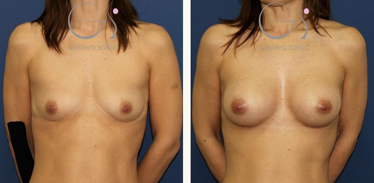 Aumento de mamas con implantes anatómicos en paciente delgada