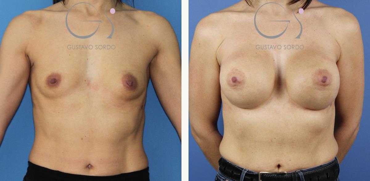 Aumento de pecho con implantes anatómicos de 545 cc.