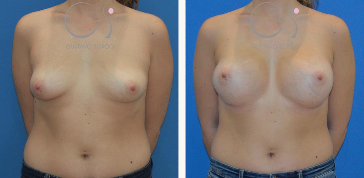 Aumento de pecho con implantes anatómicos de 375 cc.