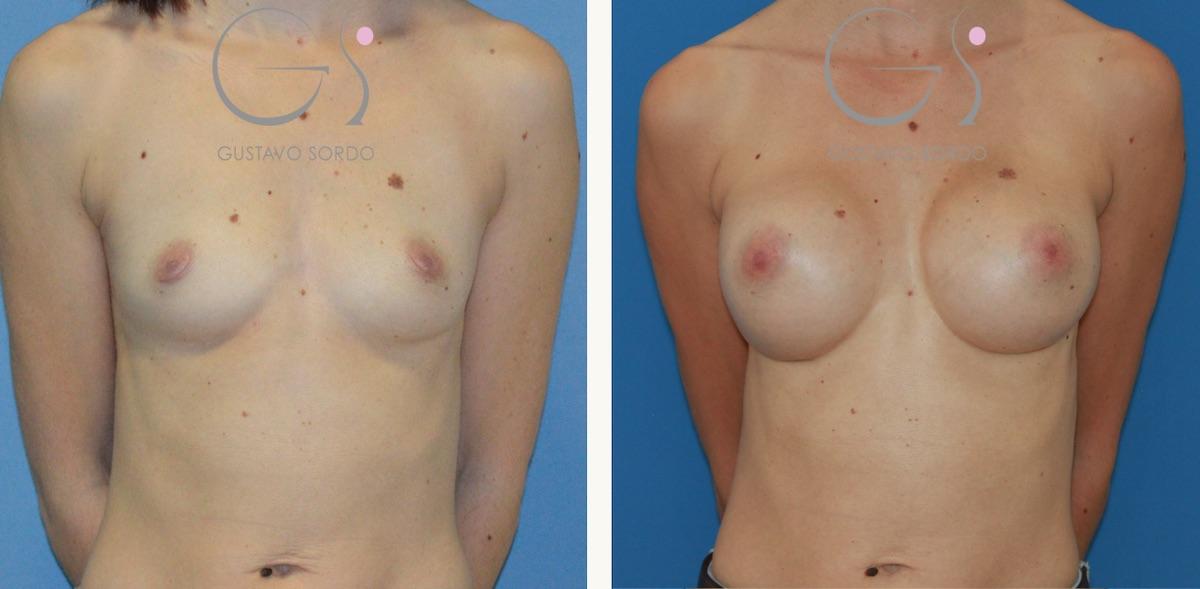 Aumento de pecho con implantes de 330 cc. anatómicos